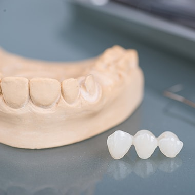 An example of a bridge and crown for Gig Harbor Family Dentistry