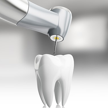 Illustration of a drill and a tooth to represent root canal therapy